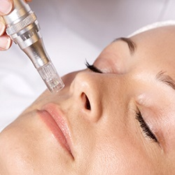biomicroneedling with collagen induction therapy